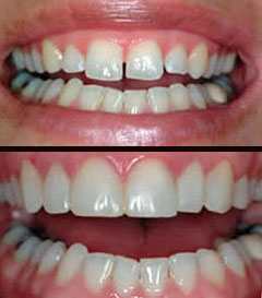 Cosmetic Dentistry Roseville Ca Gum Contouring Bryan